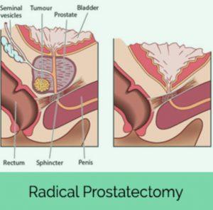 radikal prostatektomi
